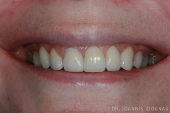 Veneers-Crowns-I-after_site