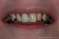 Veneers-Crowns-I-before_site