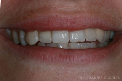 Overlaping teeth corection with veneers I-after_site