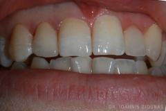 Overlaping teeth corection with veneers II-after_site