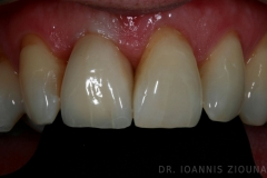 Implant b-after_site