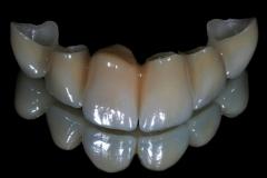 Odontiatrikes Gefyres 1