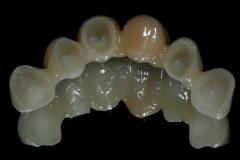 Odontiatrikes Gefyres 2